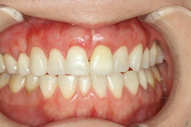 下がった歯茎を回復