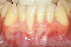 歯並びの悪い部分の歯茎