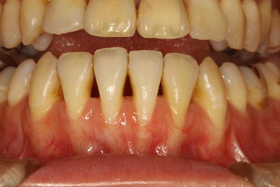 露出した歯の根っこ
