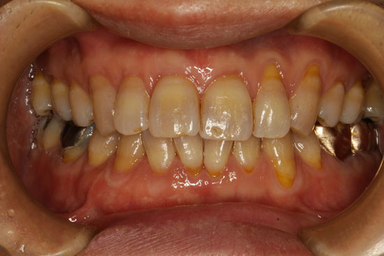 1回の来院で歯茎の再生治療をしたケース