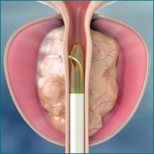 turp prostata conseguenze