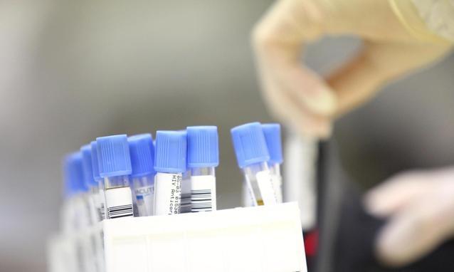 antigene prostatico specifico fpsa