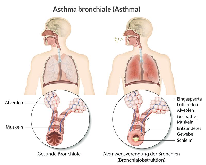 Asthmahilfe Österreich