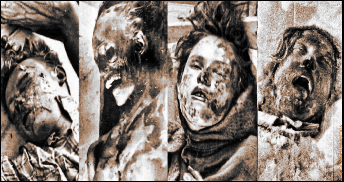 Zunge und Augen entfernt, die Kleidung von Radioaktivität versucht, graue Haare, Knochenbrüche, Schädelbrüche und Rippenbrüche. Die Verletzungen der Toten ist wahrlich lang,