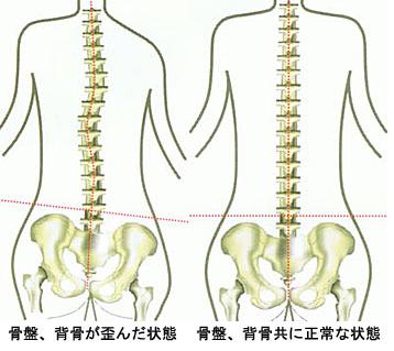 左の図のように、骨盤がゆがむと慢性腰痛の原因となります。