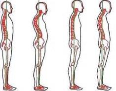 骨盤の関節がずれて骨盤がゆがむと、背骨は強く影響をうけて湾曲が強くなります。