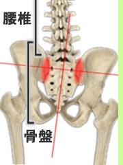 赤い部分が仙腸関節です。強くクラブを振るとこの関節に大きな負荷がかかり骨盤がゆがむ原因となります。