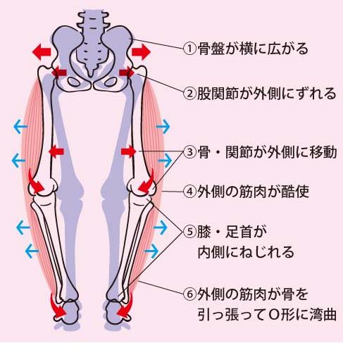 このように、骨盤や股関節に異常がおこると、膝に大きな負担がかかり痛みの原因となってしまいます。