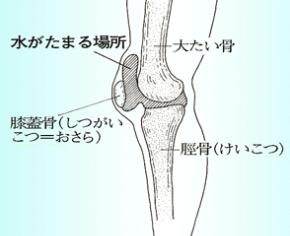 膝関節の水のたまる場所