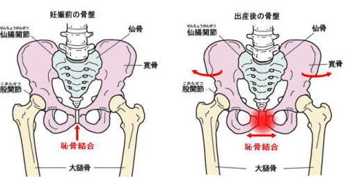 出産時に骨盤がこのようにひろがります。出産後に骨盤が元に戻らないと尿失禁の原因となってしまいます。