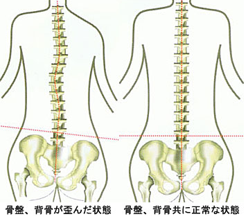 骨盤がゆがむと、背骨もゆがむので背中の痛みの原因になります。