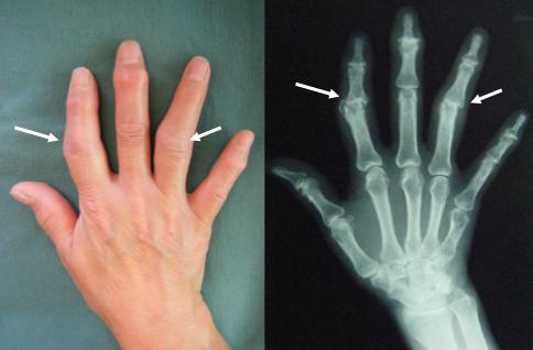 ブシャール結節は指の第2関節におこる変形性関節症です。関節の変形により骨がずれやすくなって、この骨のずれが痛みの原因になる事が多く見られます。ですので、このずれた関節を正常な位置に戻すと痛みや指の動きが改善していきます。