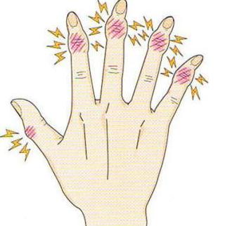 ヘバーデン結節は原因不明の指の第1関節が変形して痛みがでる疾患です。