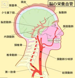首の関節がずれると、首の骨の中を通っている動脈(椎骨動脈)を圧迫し血流異常がおこります。その為、血圧を上げて脳に血液を供給するのですが、この時に頭の血管に炎症がおこります。この頭の血管の炎症が頭痛となります。