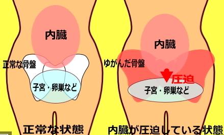骨盤がゆがむと、卵巣が圧迫されて卵巣機能が低下して生理不順や生理痛の原因になります。
