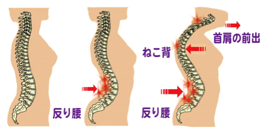 骨盤がゆがむと、背骨のS字のカーブが強くなり猫背やストレートネックになります。