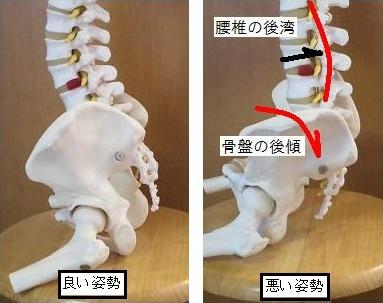 右の写真のように骨盤が後ろに傾くと骨盤がゆがんで腰痛の原因になります。
