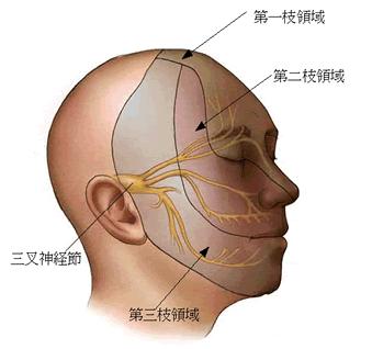 三叉神経は顔面に分布していますので、三叉神経の異常は顔面痛をおこします。骨格の首の部分の異常が三叉神経の異常を引き起こす事が少なくありません。