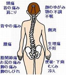 骨盤がゆがむと、このように背骨が傾きます。そうすると様々な症状を引き起こす原因になります。