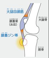 大腿四頭筋にテンションがかかると、赤丸の部分の脛骨粗面が引っぱられて痛みがおこります。