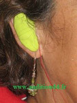 moulage appareil auditif chez audioprothésiste
