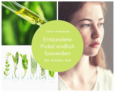 Entzündete Pickel mit Naturkosmetik loswerden