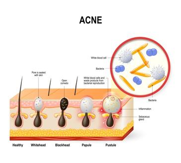 Unterschiedliche Ausprägungen bei Akne - Akneauslöser Bakterien