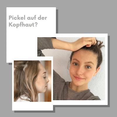 Pickel auf der Kopfhaut