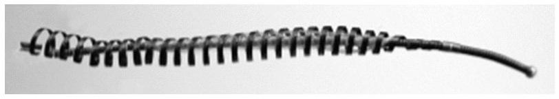 Essure implant ligature des trompes utérus clips de filshies retrait fatigue chronique burn-out douleurs hémorragie migraine hystérectomie vasectomie stérilisation médical device removal fallopian tube metal coils injuries dolore fatica isterectomia utero