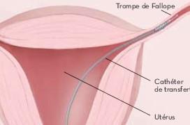 essure-stérilisation-tubaire-hystéroscopie