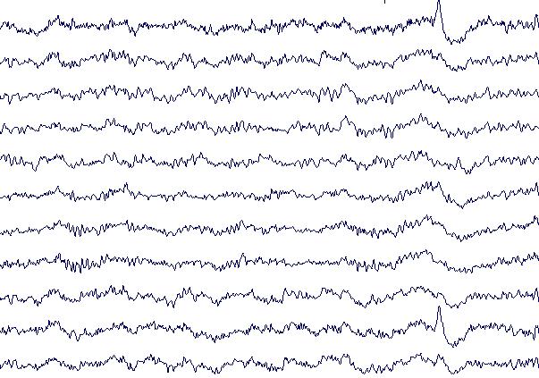 EEG - l'électro-encéphalogramme