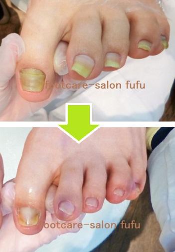 変色 足 の 爪
