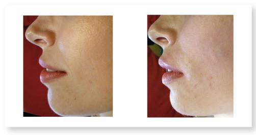 Ricostruzione volumetrica di labbra e zigomi