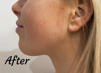 Jawline reduction after treatment with filler