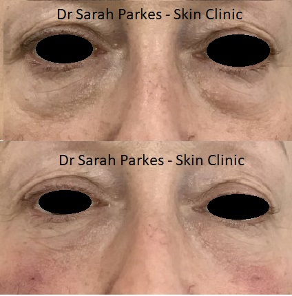 Tear trough filler before and after picture Dr Sarah Parkes Skin Clinic