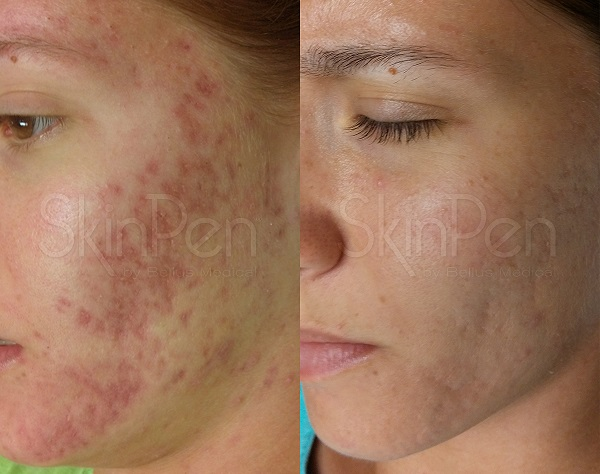 Acne scarring  improvement before and after microneedling treatments