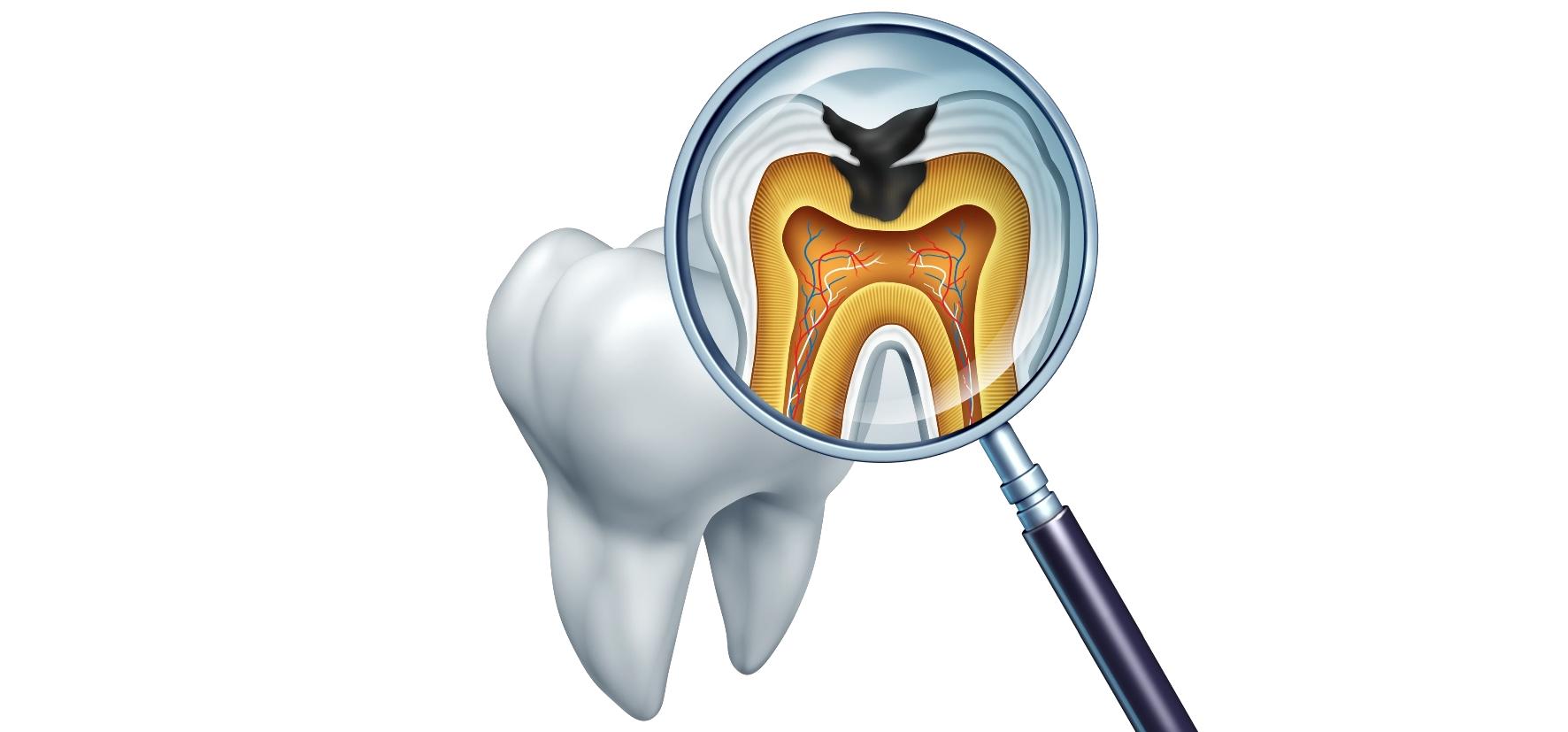 Karies: Ursachen, Vorbeugung, Behandlung - Zahnarzt
