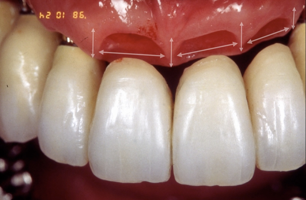 Conditions required for an ideal juncture form There must be a height to make pseudo-interdental papilla and space to adjacent teeth. In the case of
