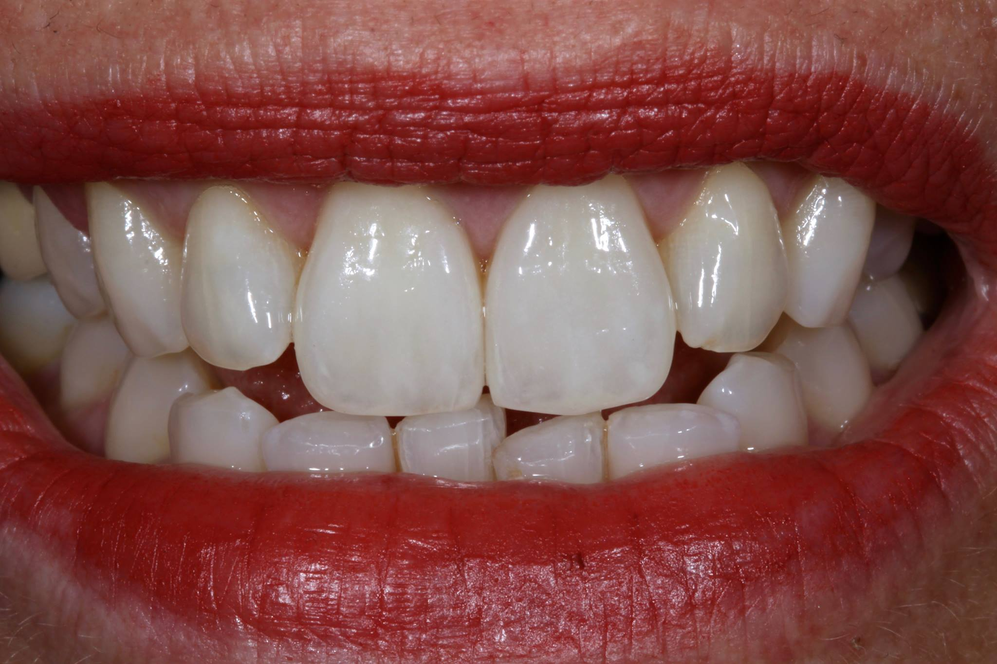 Veneers on #8 and #9