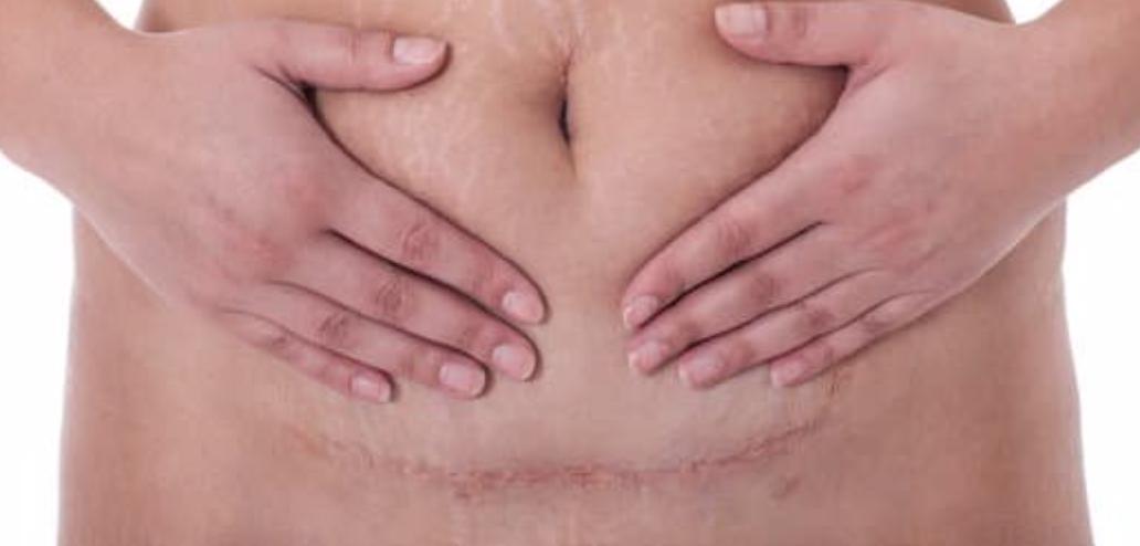 Douleur de cicatrice de césarienne