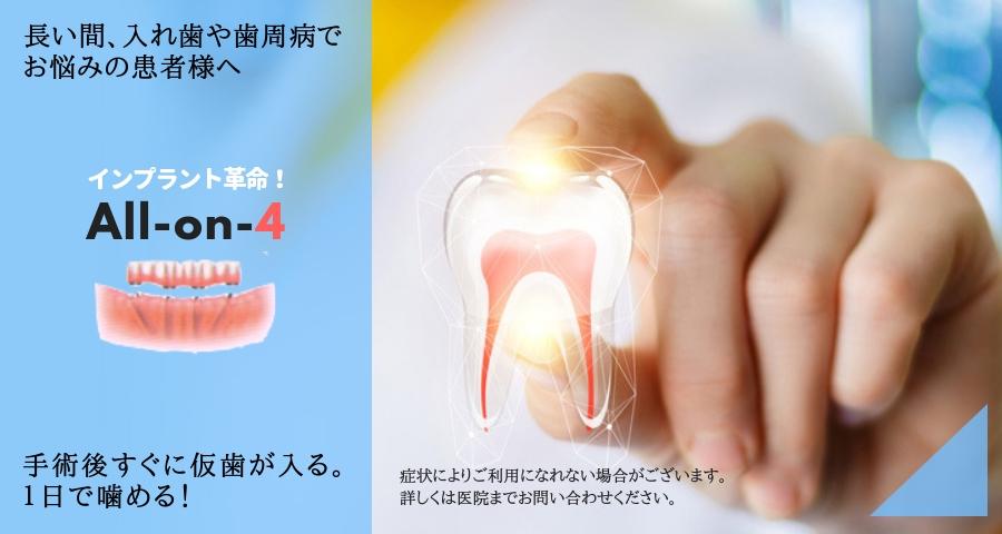 インプラント革命!「All-on-4」長い間、入れ歯や歯周病でお悩みの患者様へ。手術後すぐに仮歯が入るので1日で噛めるようになります。