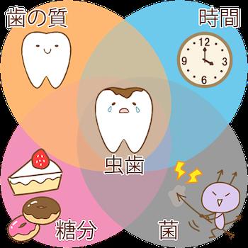 虫歯の4条件