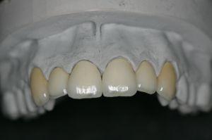 vollkeramische Kronen im Oberkiefer mit Gerüst aus Zirkonoxid