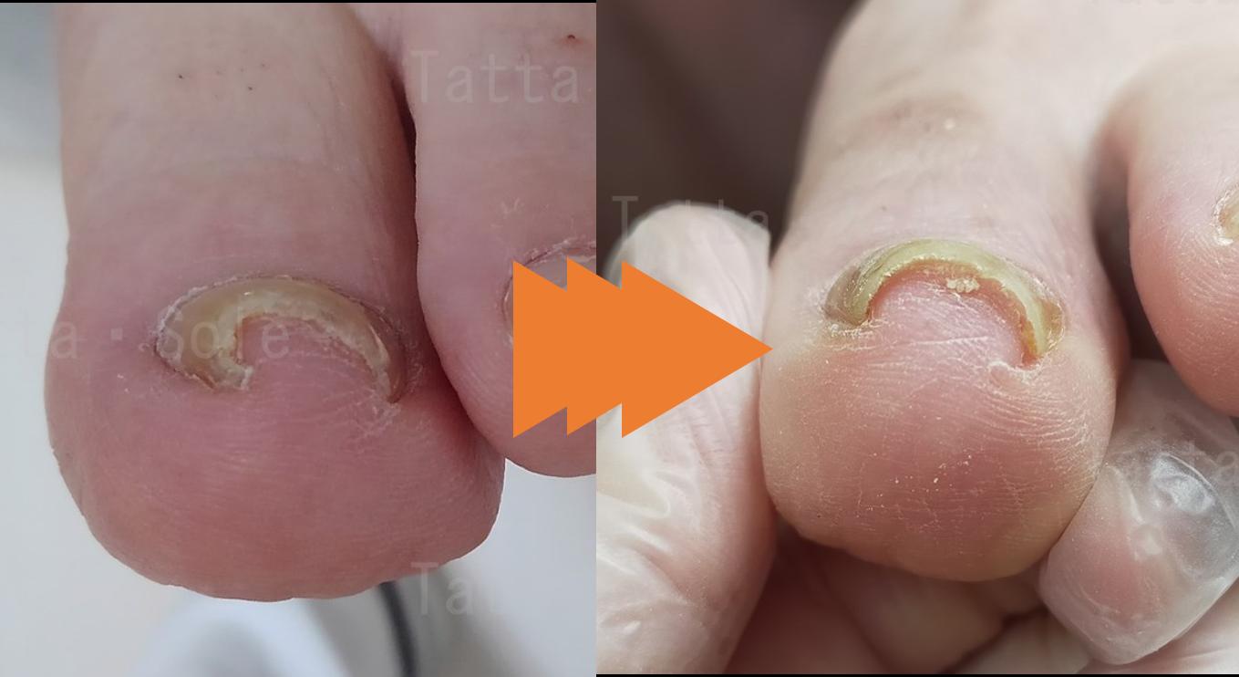 深く切ってしまった巻き爪の経過