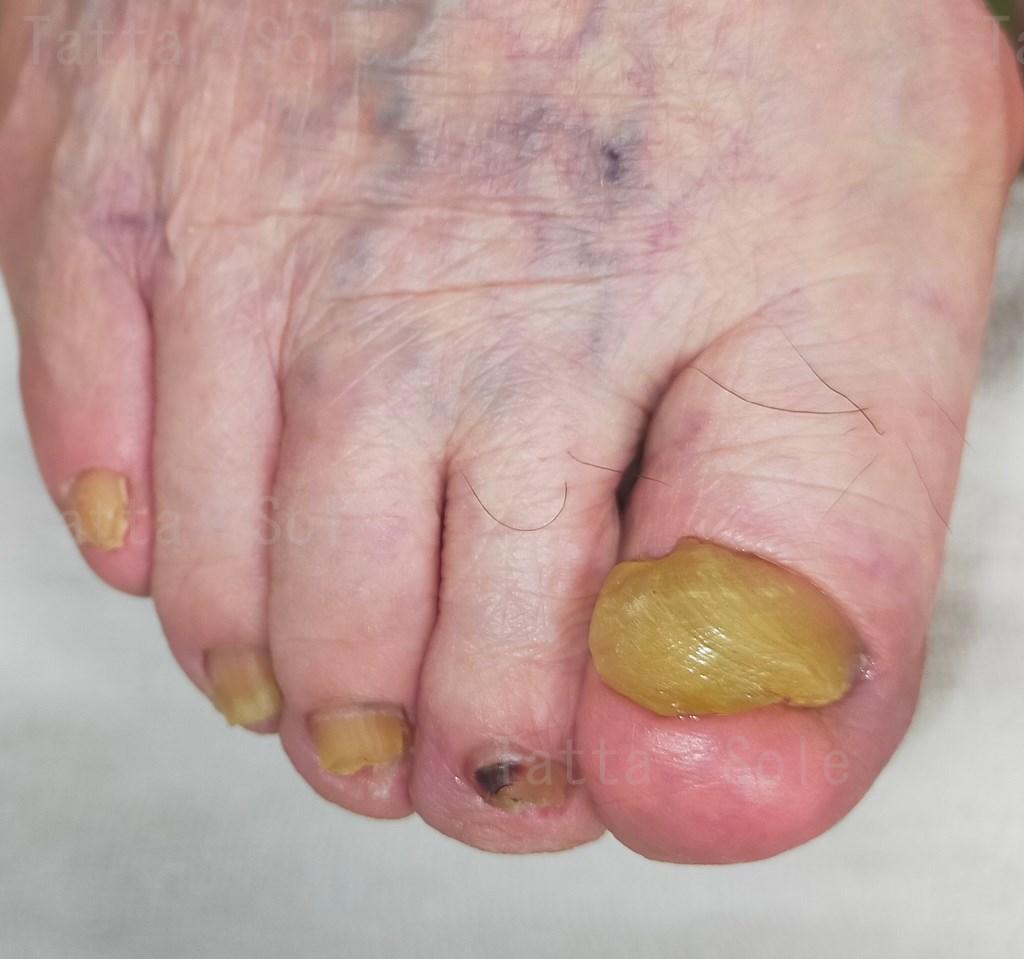 爪が変形しているので、足を見せるのが恥ずかしい。