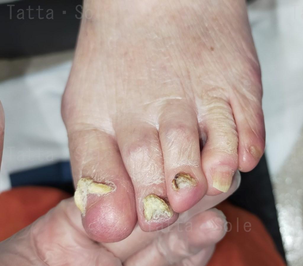 上向きに伸びている足の爪の経過