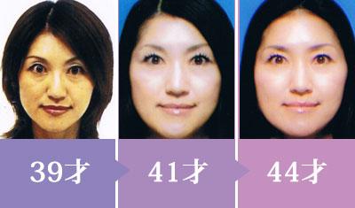上田珠良自身のbefore&after(運転免許証の写真)
