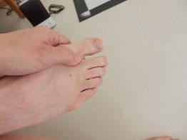 外反母趾│足の親指の付け根の痛み
