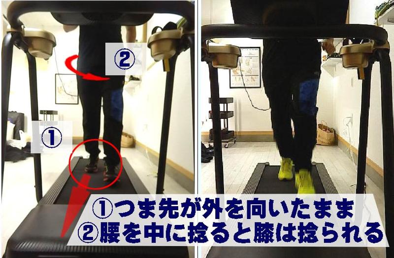 シューズが原因する膝の痛み