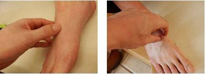 足の甲の痛み│シューレースの種類